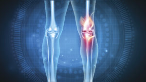 knee pain treatment beverly hills
